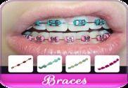 Braces Colors Beauty Multimédia